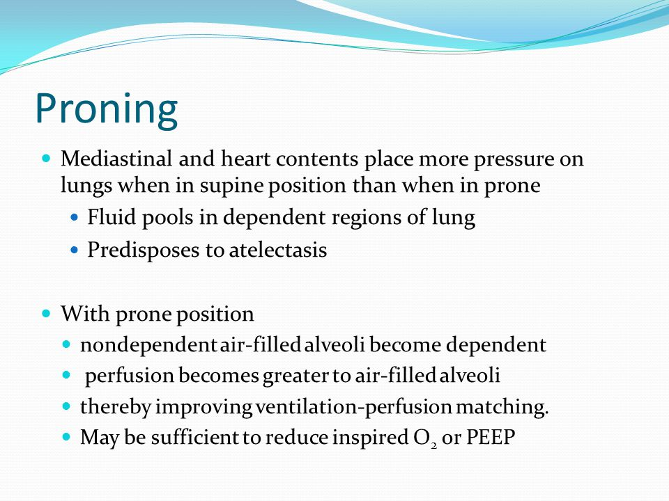Proning Mediastinal and heart contents place more pressure on lungs when in supine position than when in prone.