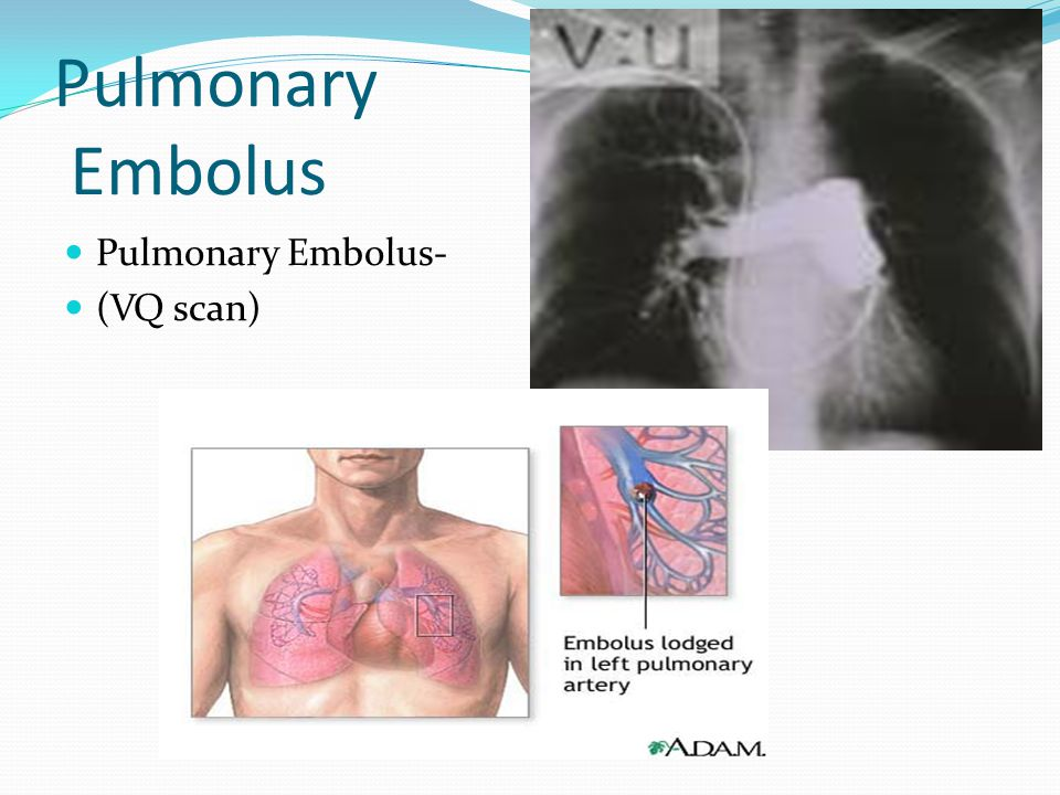 Pulmonary Embolus Pulmonary Embolus- (VQ scan)