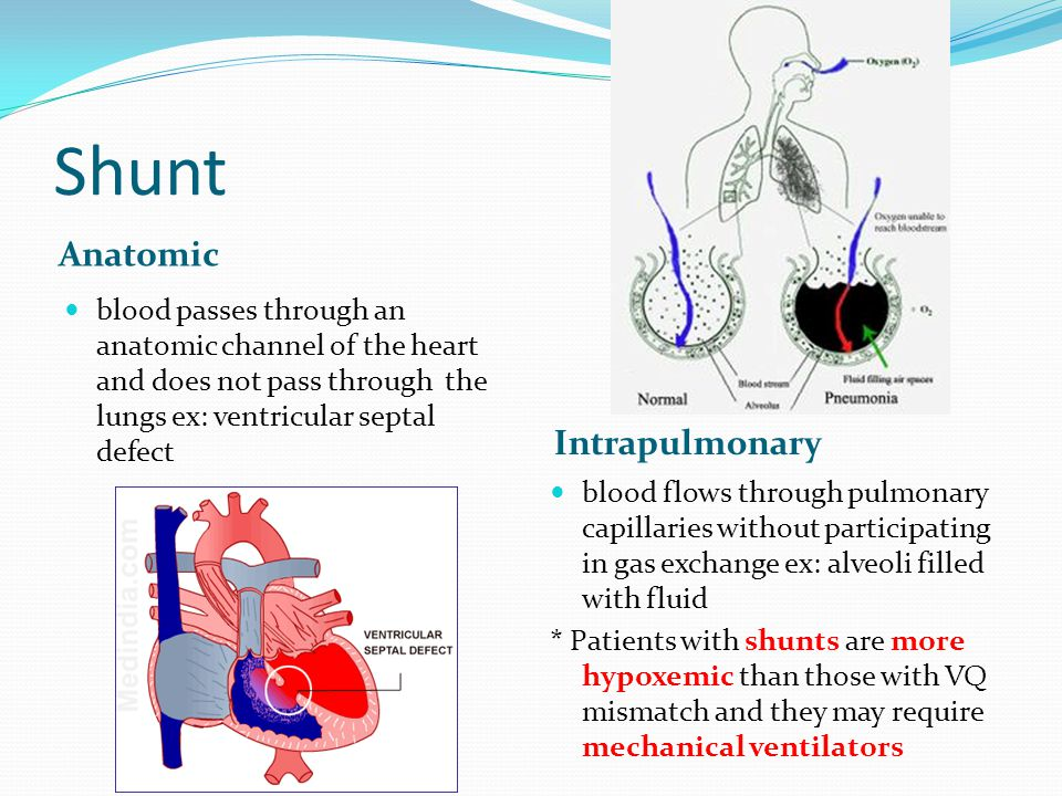Shunt Anatomic Intrapulmonary