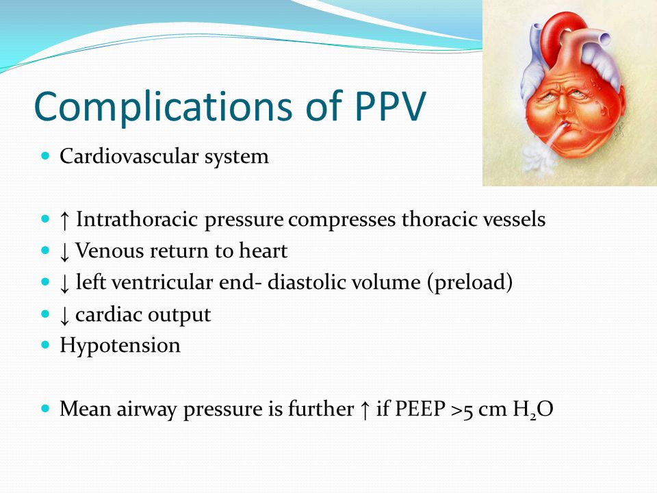 Complications of PPV Cardiovascular system