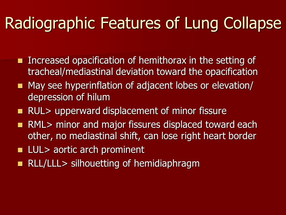 Radiographic Features of Lung Collapse