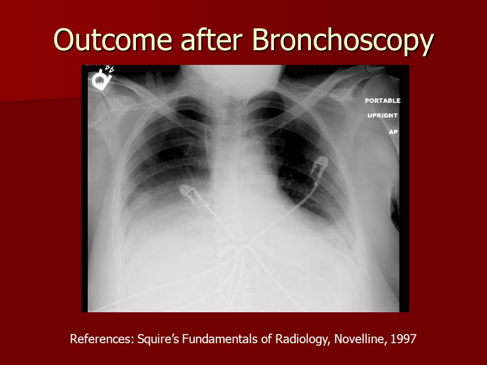 Outcome after Bronchoscopy