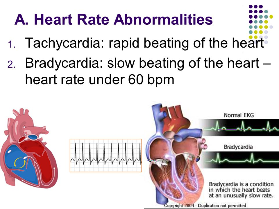 A. Heart Rate Abnormalities