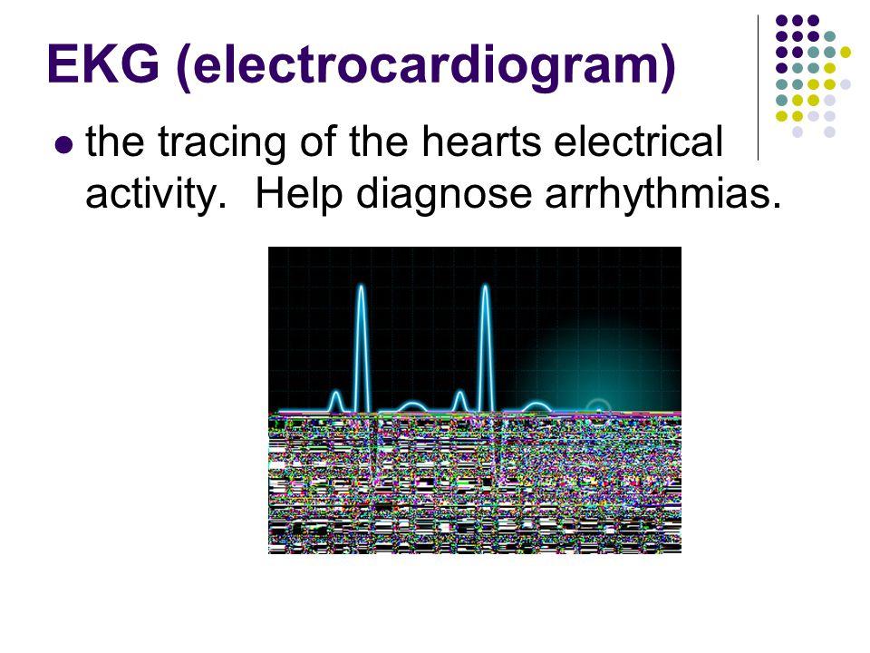 EKG (electrocardiogram)