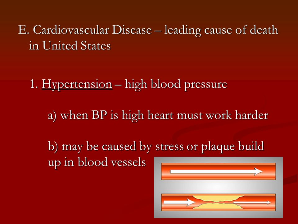 E. Cardiovascular Disease – leading cause of death in United States 1