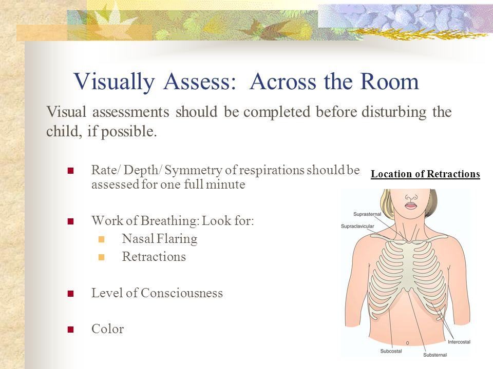 Visually Assess: Across the Room