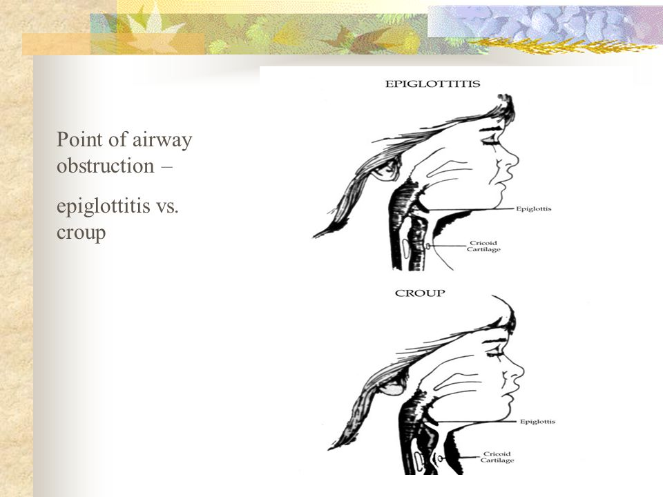 Point of airway obstruction –