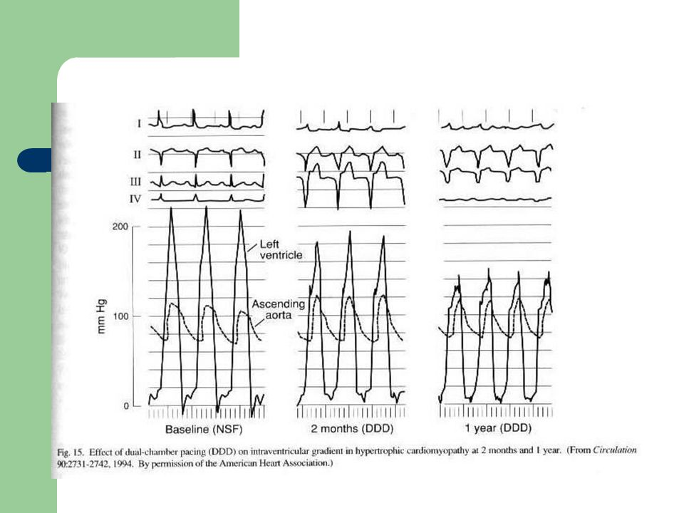 Effect of DDD pacemaker in HCM