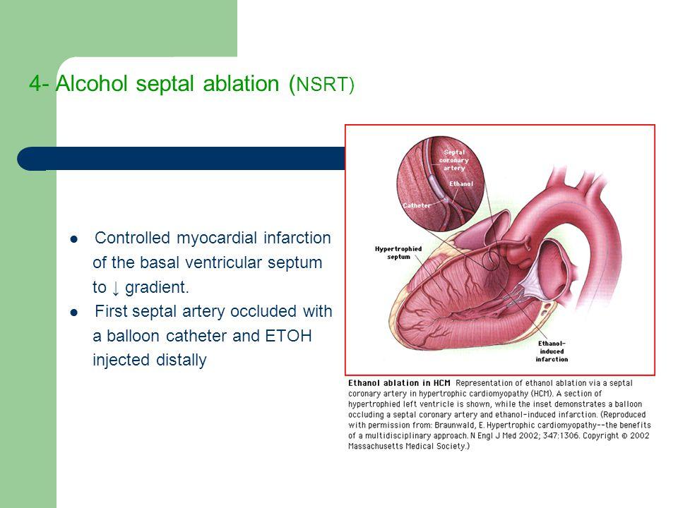 4- Alcohol septal ablation (NSRT)