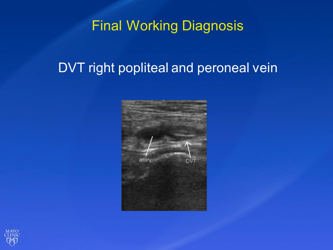 Final Working Diagnosis