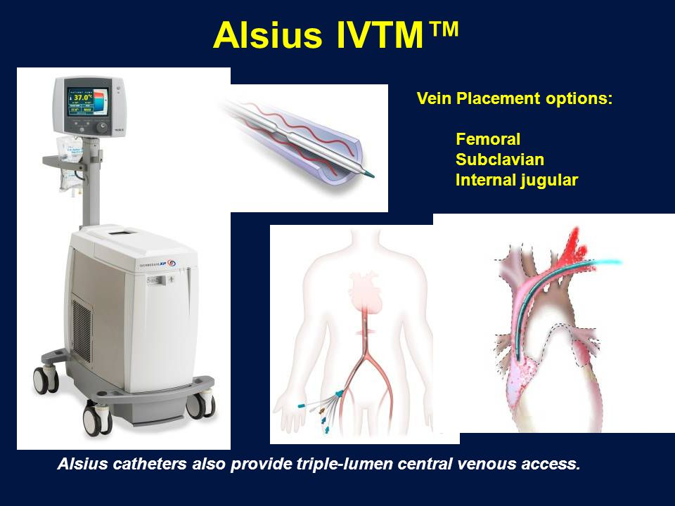 Alsius IVTM™ Vein Placement options: Femoral Subclavian
