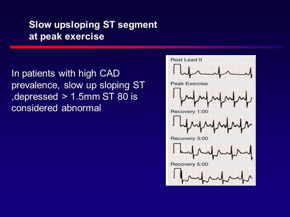 Slow upsloping ST segment at peak exercise