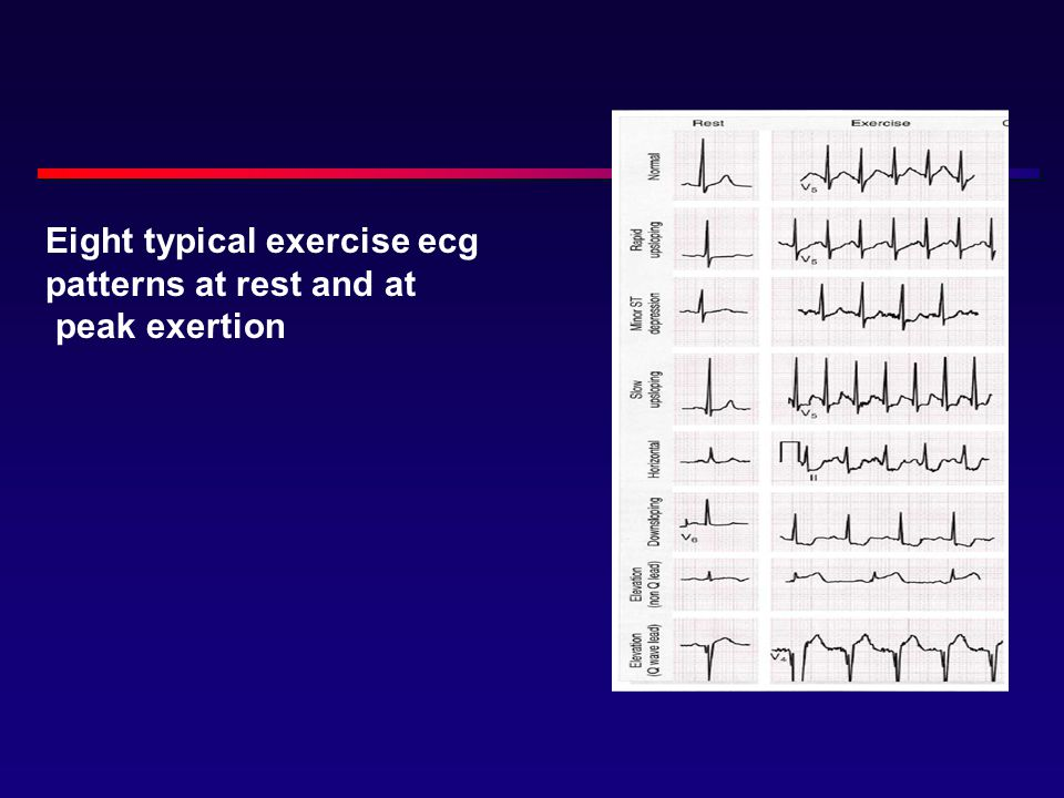 Eight typical exercise ecg patterns at rest and at