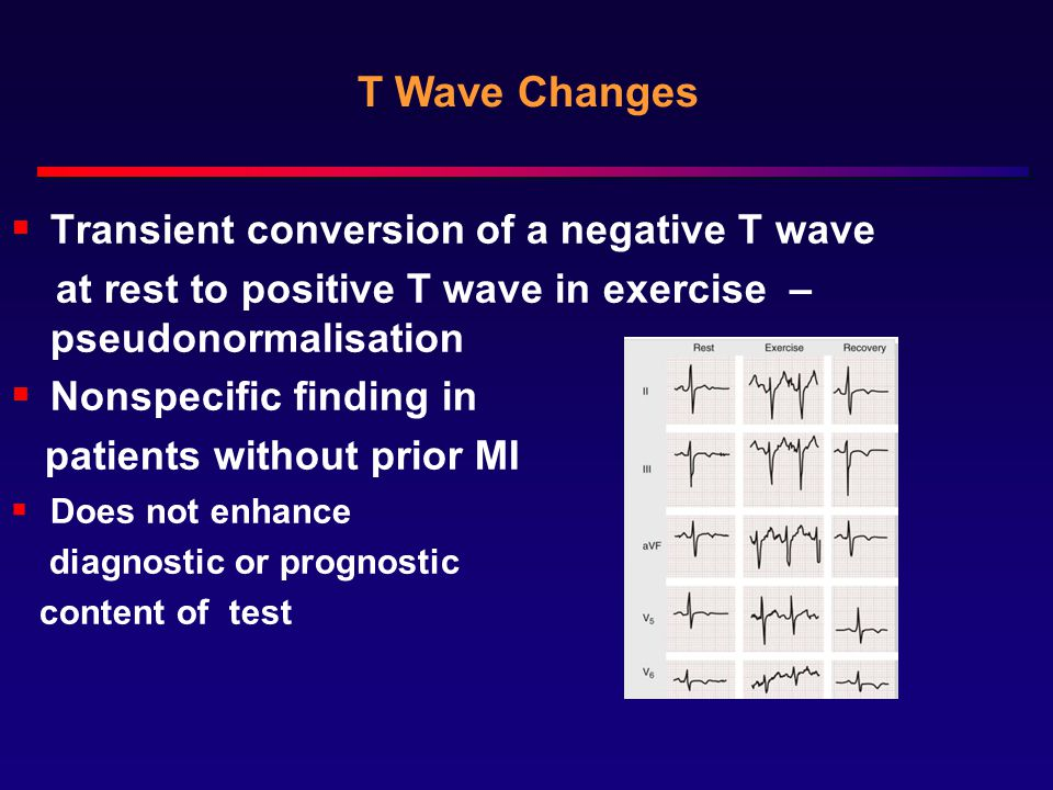 T Wave Changes Transient conversion of a negative T wave