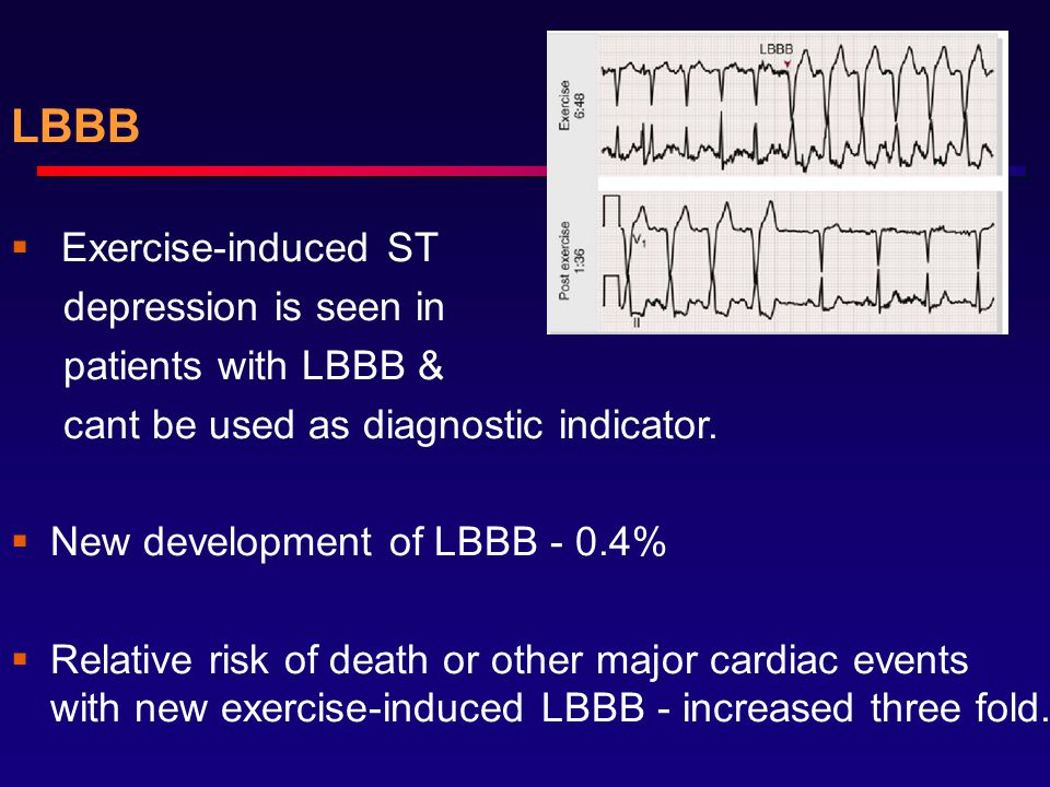 LBBB Exercise-induced ST depression is seen in patients with LBBB &