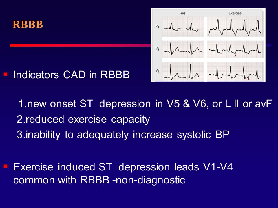 RBBB Indicators CAD in RBBB 2.reduced exercise capacity