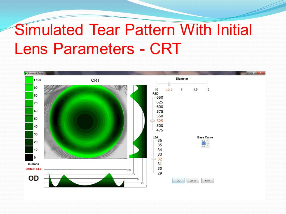 Simulated Tear Pattern With Initial Lens Parameters - CRT