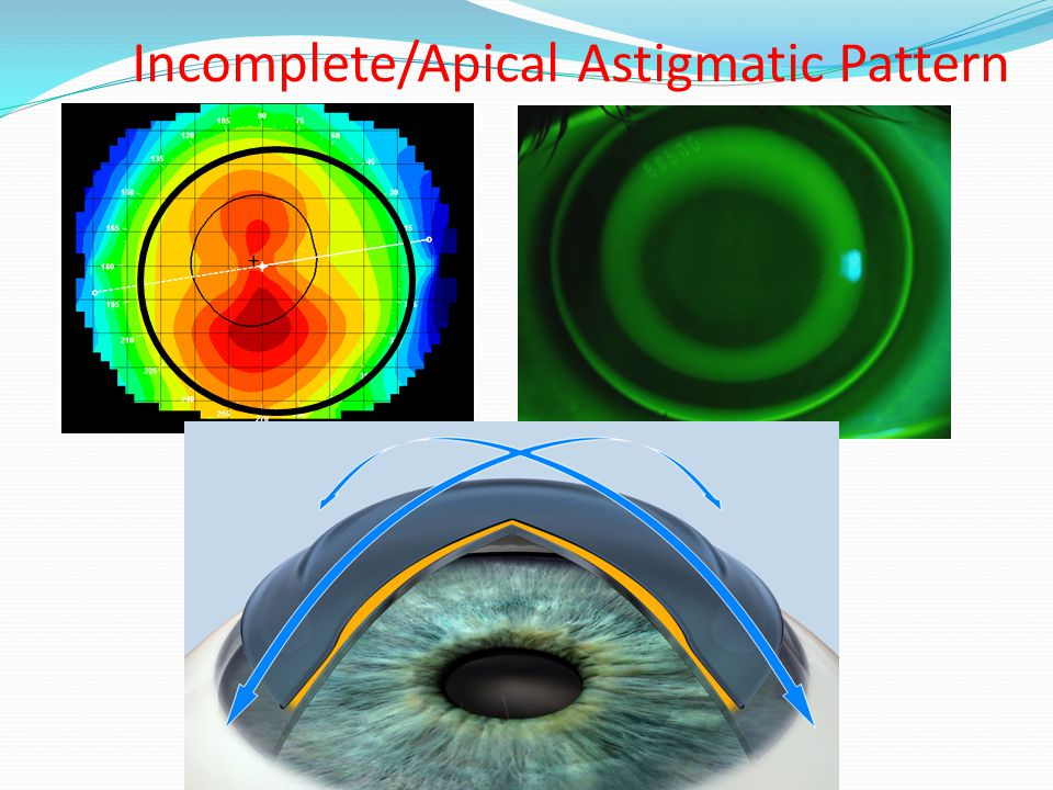 Incomplete/Apical Astigmatic Pattern