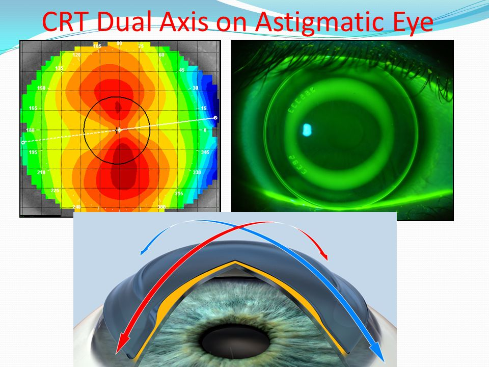 CRT Dual Axis on Astigmatic Eye