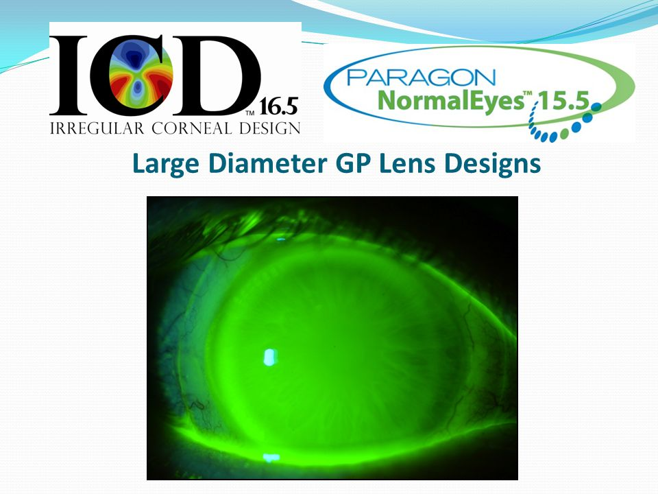 Large Diameter GP Lens Designs