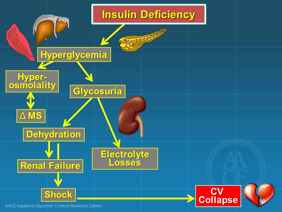 Insulin Deficiency Hyperglycemia Hyper- osmolality Glycosuria Δ MS