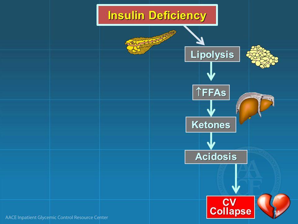 Insulin Deficiency Lipolysis FFAs Ketones Acidosis CV Collapse