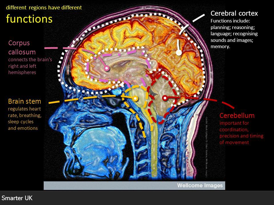 Cerebral cortex Corpus callosum Brain stem Cerebellum