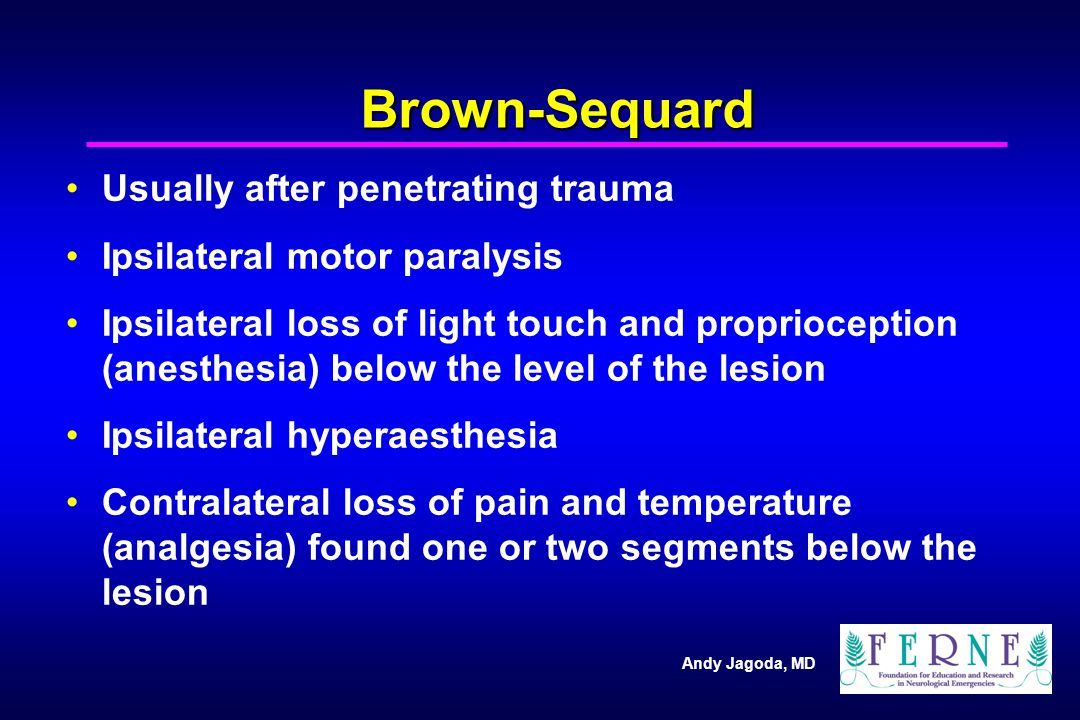 Brown-Sequard Usually after penetrating trauma