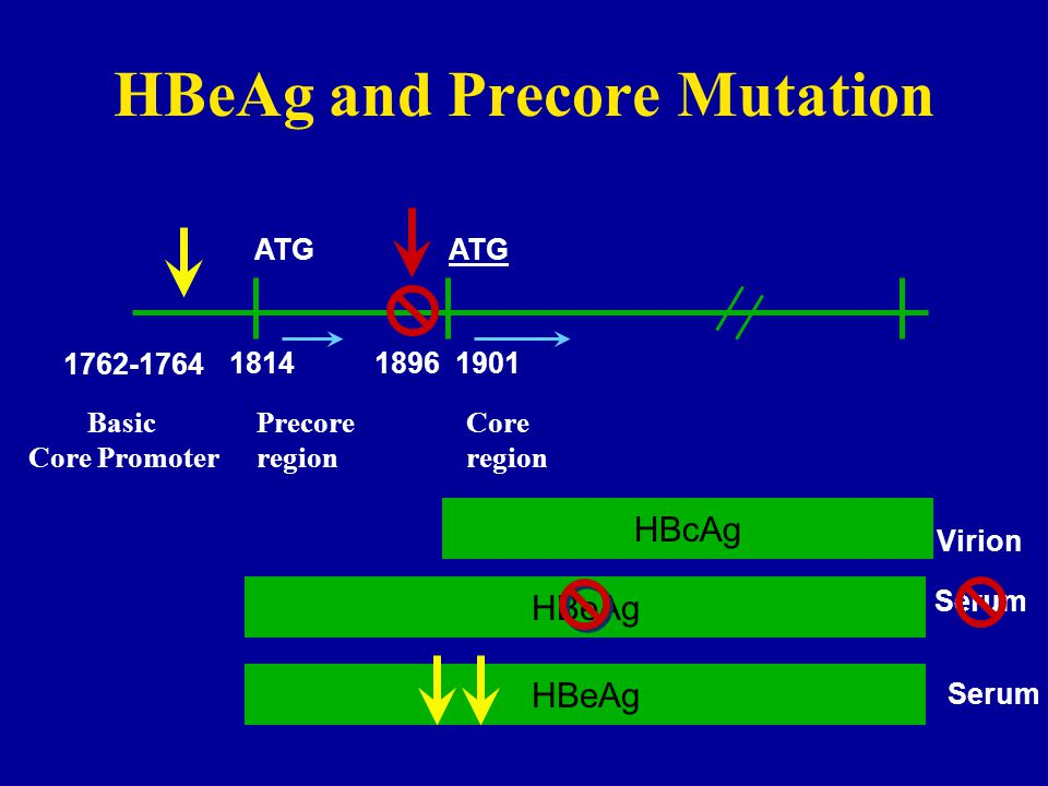 HBeAg and Precore Mutation