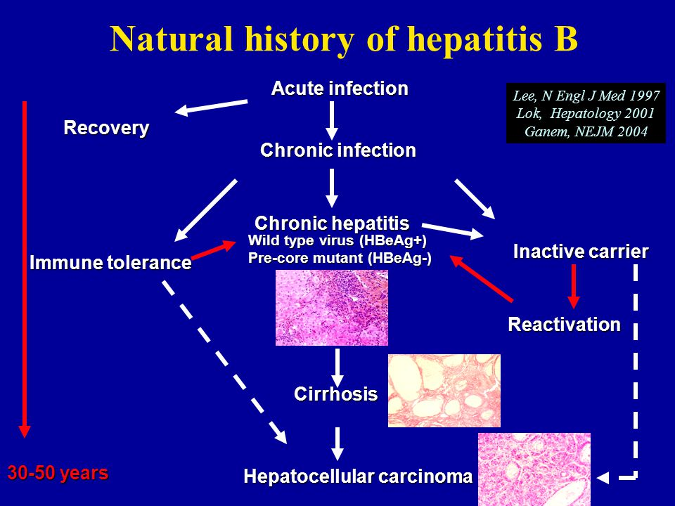 Natural history of hepatitis B