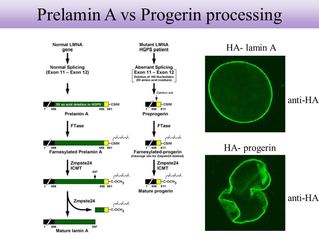 Prelamin A vs Progerin processing