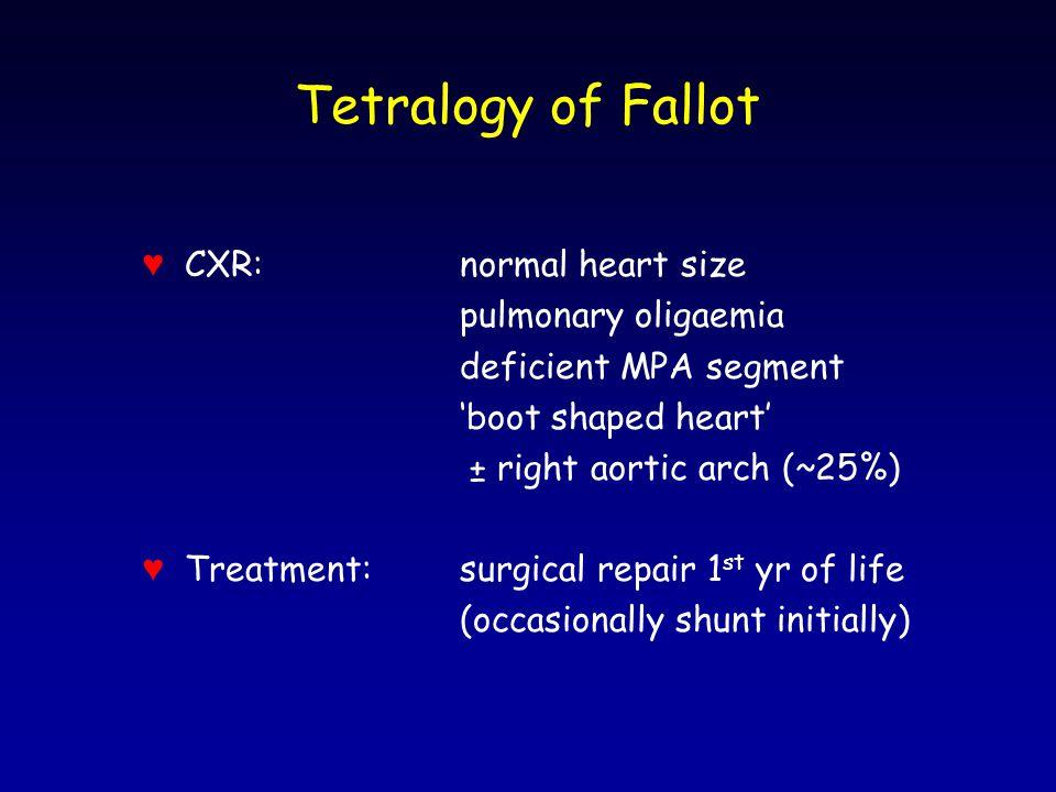 Tetralogy of Fallot ♥ CXR: normal heart size pulmonary oligaemia