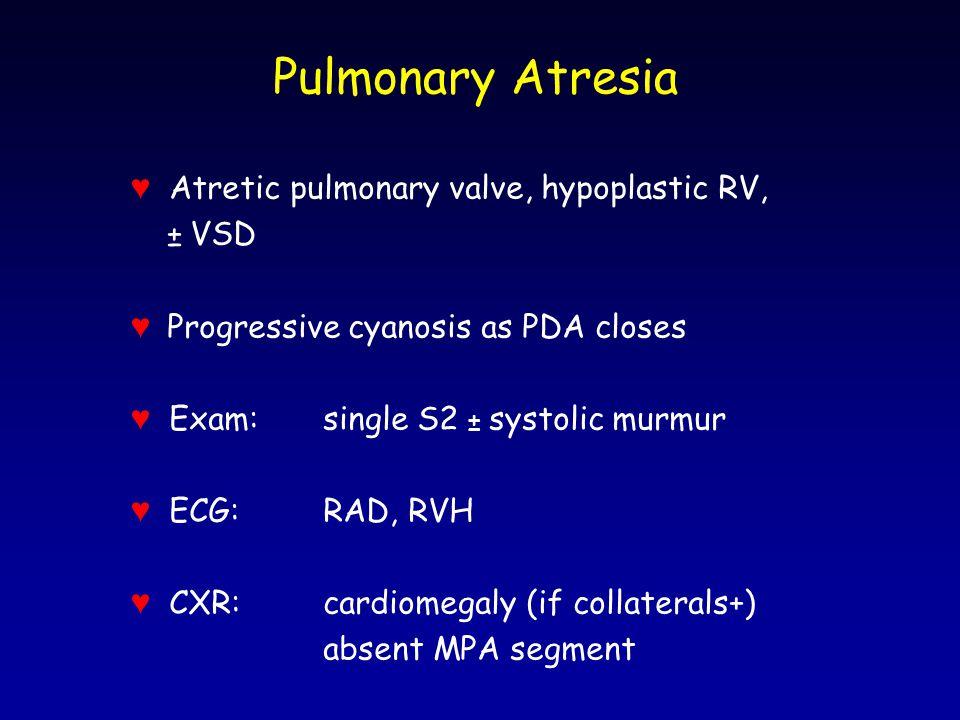 Pulmonary Atresia ♥ Atretic pulmonary valve, hypoplastic RV, ± VSD