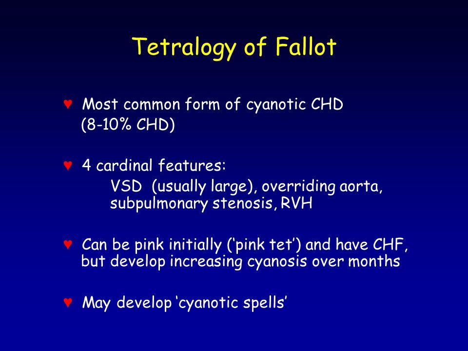 Tetralogy of Fallot ♥ Most common form of cyanotic CHD (8-10% CHD)