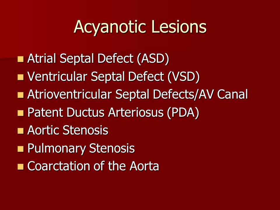 Acyanotic Lesions Atrial Septal Defect (ASD)