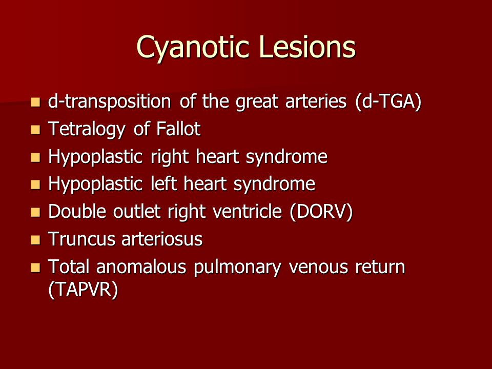 Cyanotic Lesions d-transposition of the great arteries (d-TGA)