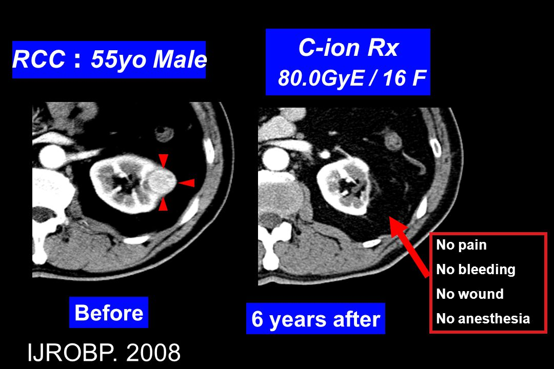 C-ion Rx RCC:55yo Male IJROBP. 2008 80.0GyE / 16 F Before