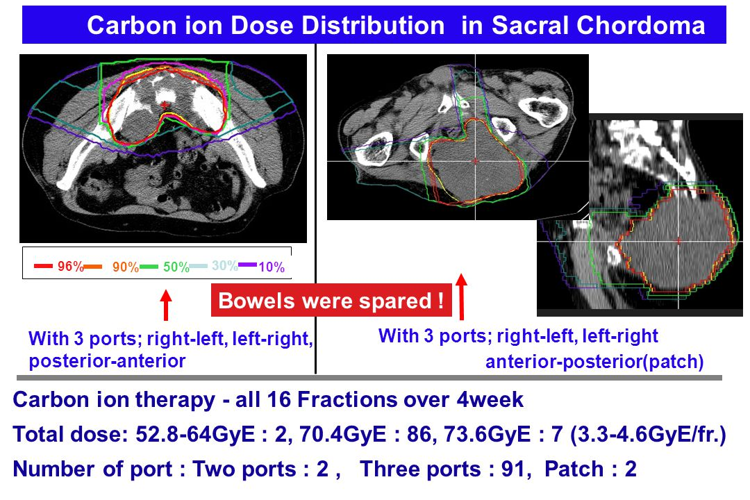Carbon ion Dose Distribution in Sacral Chordoma