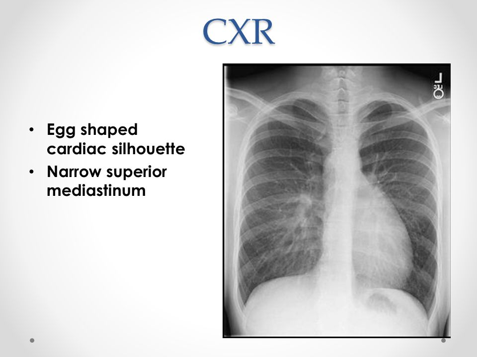 CXR Egg shaped cardiac silhouette Narrow superior mediastinum