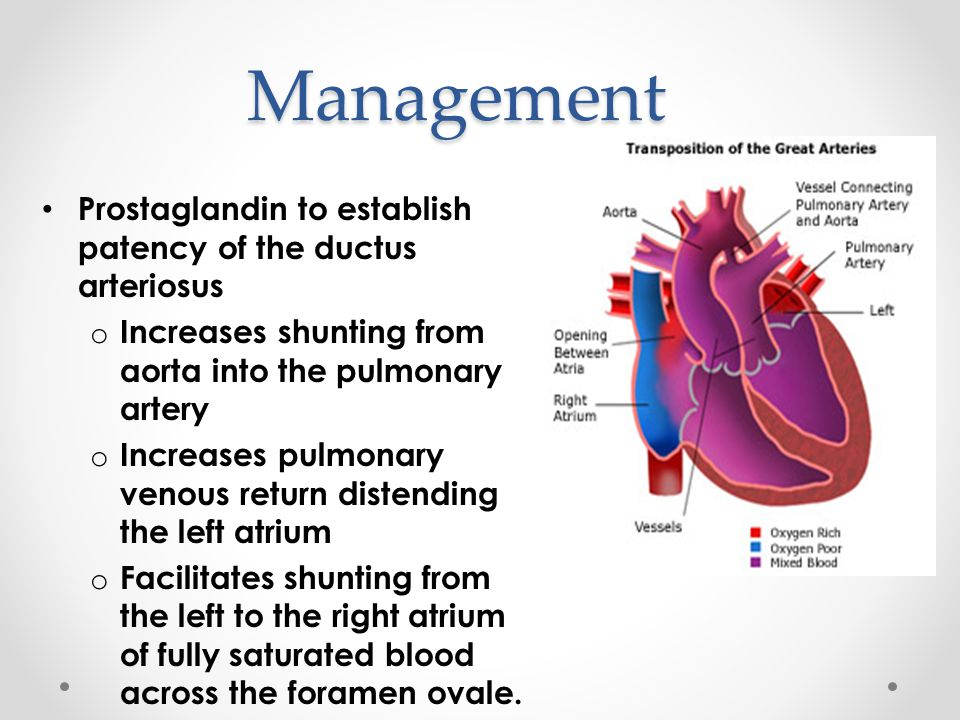 Management Prostaglandin to establish patency of the ductus arteriosus
