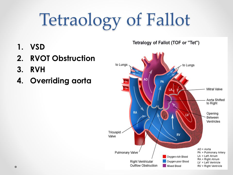 Tetraology of Fallot VSD RVOT Obstruction RVH Overriding aorta