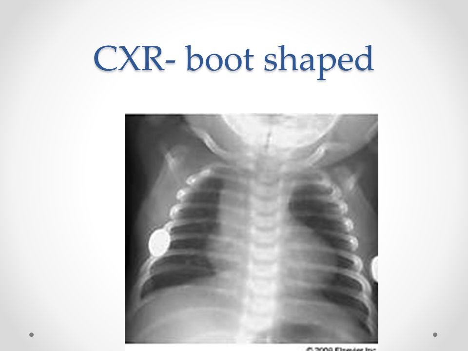 CXR- boot shaped Ask what are the classic CXR findings