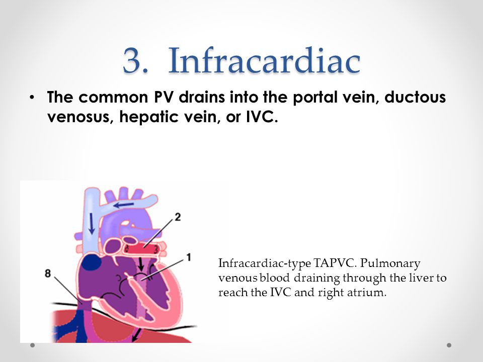 3. Infracardiac The common PV drains into the portal vein, ductous venosus, hepatic vein, or IVC.