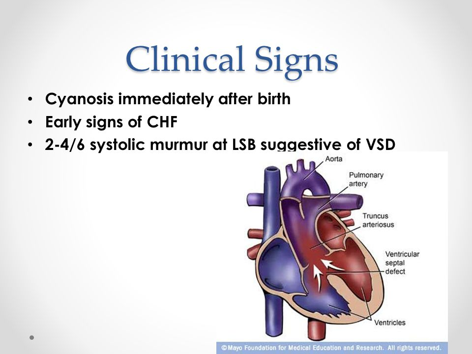 Clinical Signs Cyanosis immediately after birth Early signs of CHF