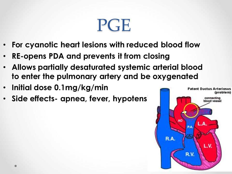PGE For cyanotic heart lesions with reduced blood flow
