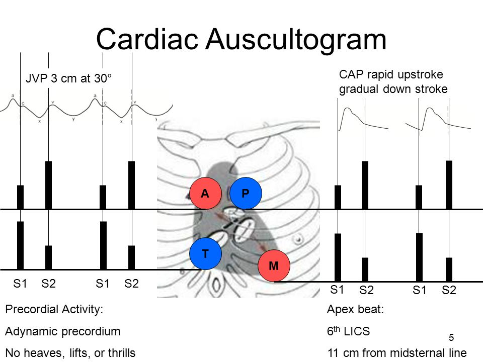 Cardiac Auscultogram CAP rapid upstroke gradual down stroke