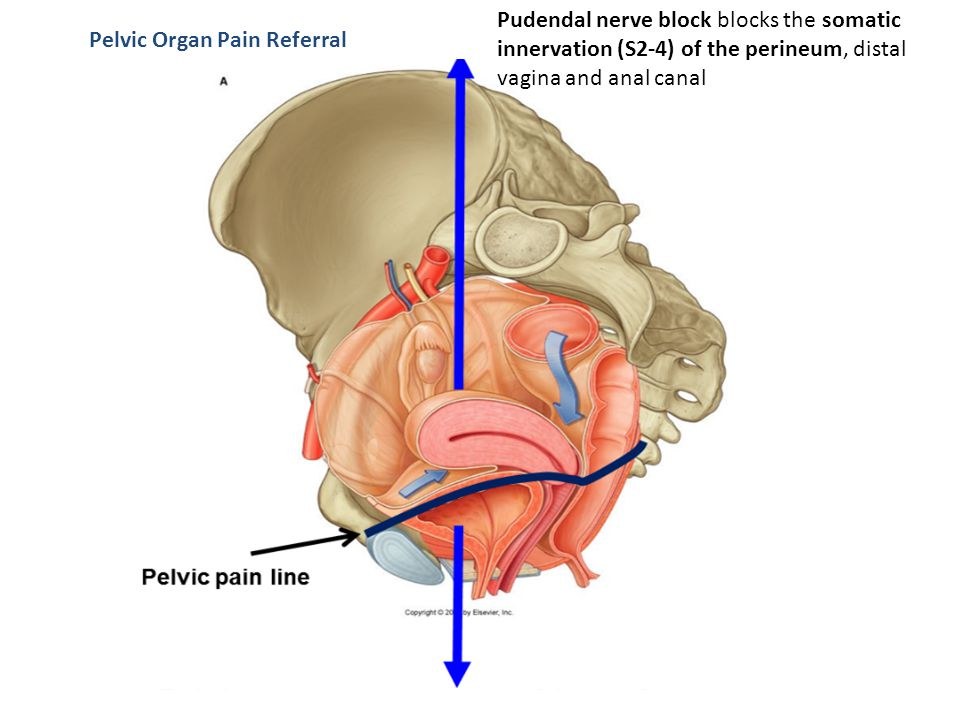 Pudendal nerve block blocks the somatic innervation (S2-4) of the perineum, distal vagina and anal canal