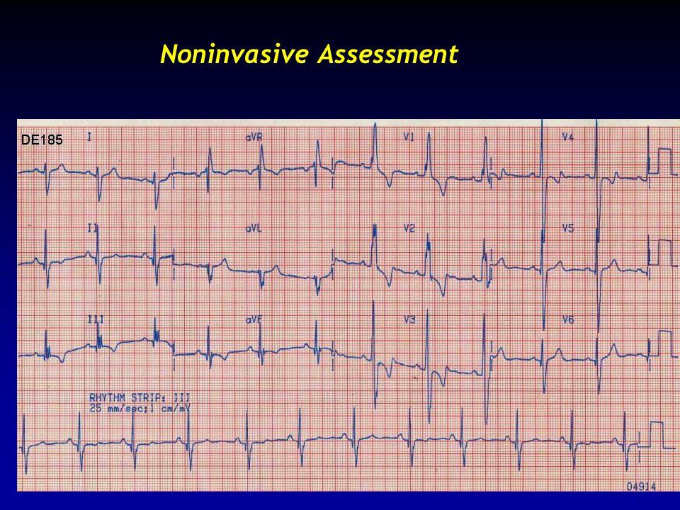 Noninvasive Assessment