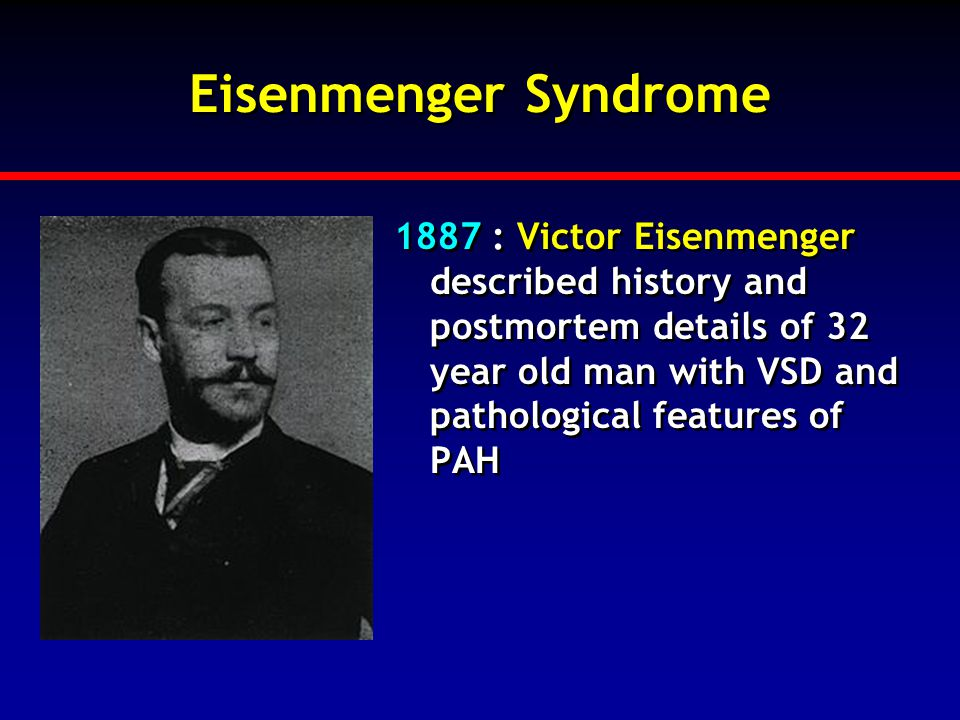 Eisenmenger Syndrome 1887 : Victor Eisenmenger described history and postmortem details of 32 year old man with VSD and pathological features of PAH.
