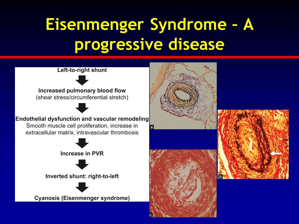 Eisenmenger Syndrome – A progressive disease